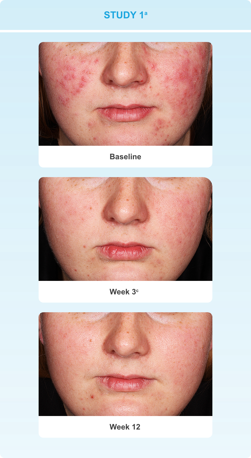 Series showing progressive reduction in lesions on a subject's face at baseline, week 3 and week 12 in study 1