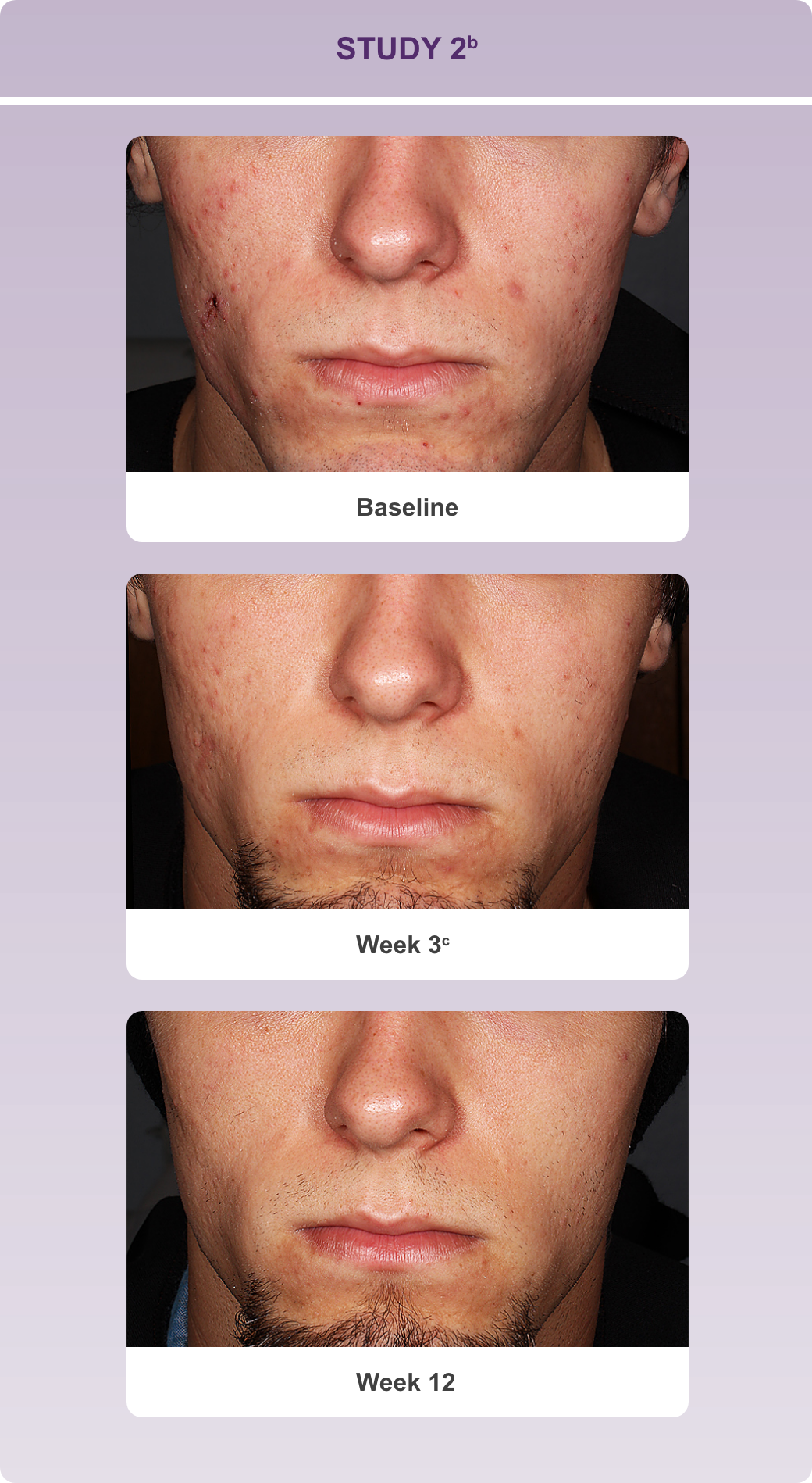 Series of progressive reduction in lesions on a subject's face at baseline, week 3 and week 12 in study 2